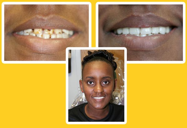 smile restoration before and after