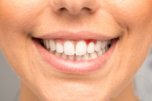 woman with bleeding gums