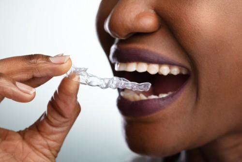 clear dental aligner